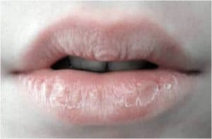Close up of cracked lips.
